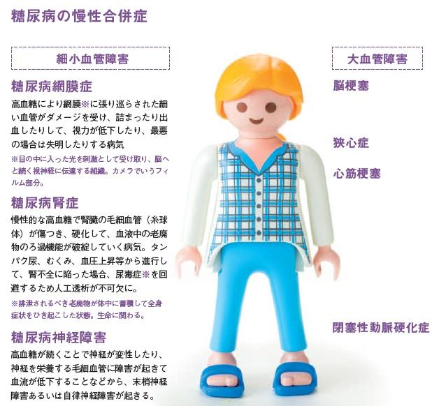 http://robust-health.jp/article/106-1.1.jpg