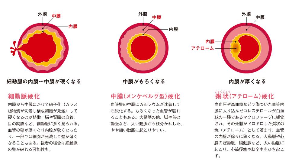 http://robust-health.jp/article/107_%E7%94%9F%E6%B4%BB%E7%BF%92%E6%85%A3%E7%97%85_2_%E5%8B%95%E8%84%88%E7%A1%AC%E5%8C%96.jpg