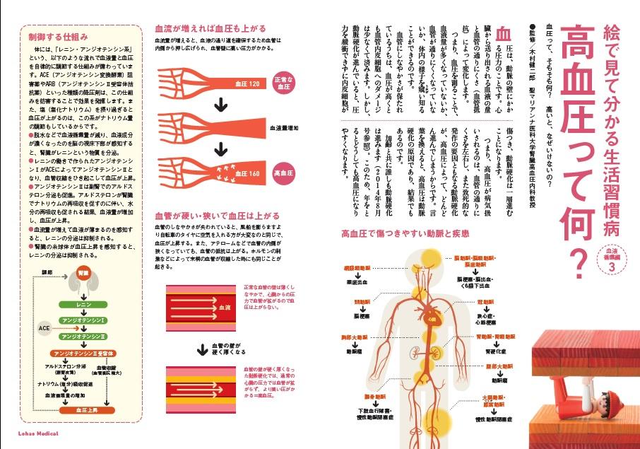 http://robust-health.jp/article/109-1-1.jpg