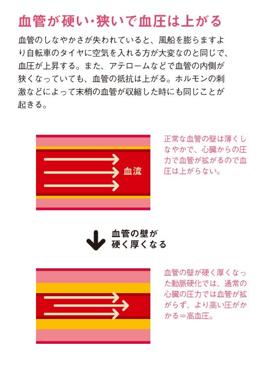 http://robust-health.jp/article/109_zuhan03.jpg